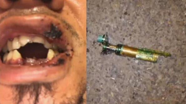 ¡Pilas! Cigarrillo electrónico le explotó en la boca a un hombre