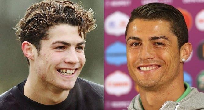 Médico revela las cirugías plásticas que se habría realizado Cristiano Ronaldo