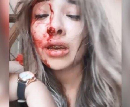 Resultado de imagen para Impactante video: una joven denunció que su novio la golpeó brutalmente cuando le dijo que quería separarse