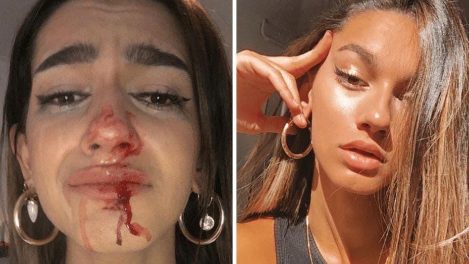 Denuncia joven trans de españa agresiones en su contra