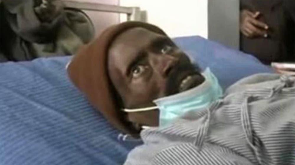 Un hombre resucitó en la morgue cuando lo iban a embalsamar