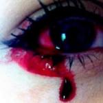 Llora sangre y no saben por qué