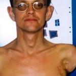 El increíble caso del primer hombre que se sometió a un trasplante de brazos: ya puede moverlos