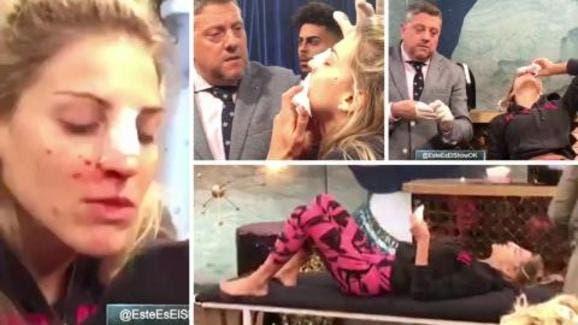 Resultado de imagen para ¡Impactante! El video de los momentos posteriores a la fractura de tabique de Macarena Rinaldi